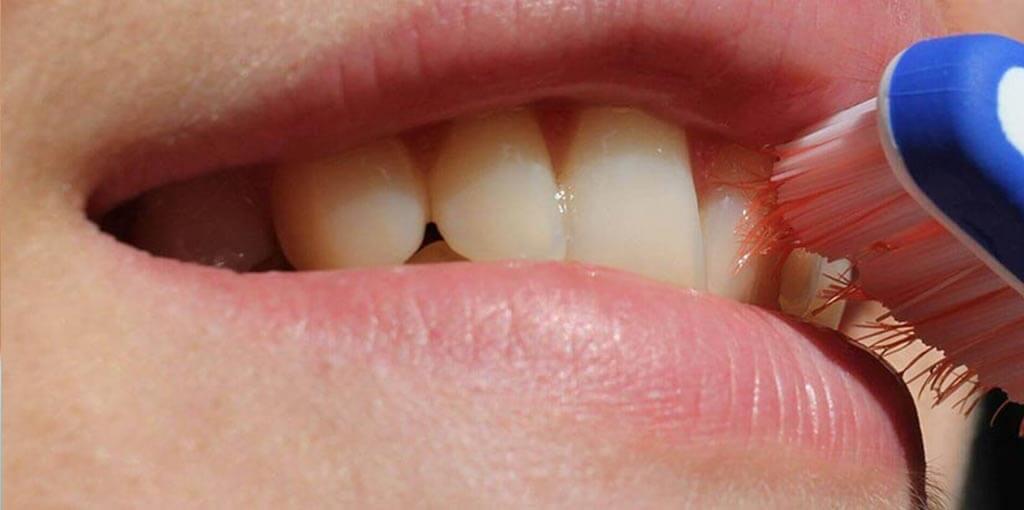Mundgeruch - Behandlung