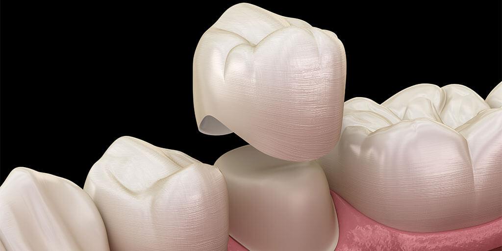 Was ist eine Zahnkrone